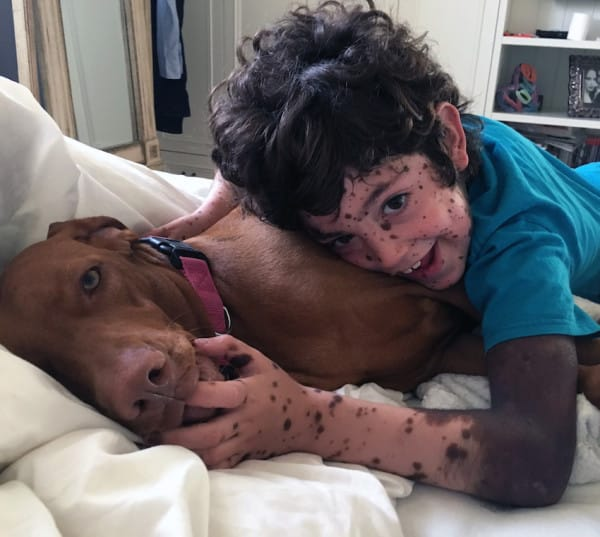 Pic from Caters News - A mum is standing up against bullies by covering herself in dark dots to match her disabled son who was cruelly mocked by onlookers about his rare skin condition. Erez Gaon, from Israel, was born with Congenital Melanocytic Naevus, a rare condition where the body produces excess melanin, a pigment in the skin, which means he is covered head to toe in dark moles. Erezs condition is so severe that he even has moles internally on his spine and brain, which have made him prone to epileptic seizures. Only one percent of infants worldwide are born with this condition, which worsens as the child grows older. SEE CATERS COPY