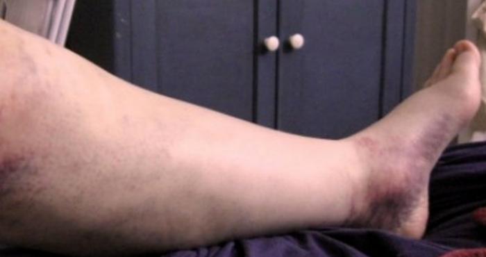 hur känns en propp i benet