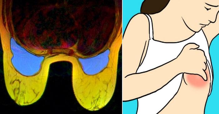 ont på sidan av bröstet