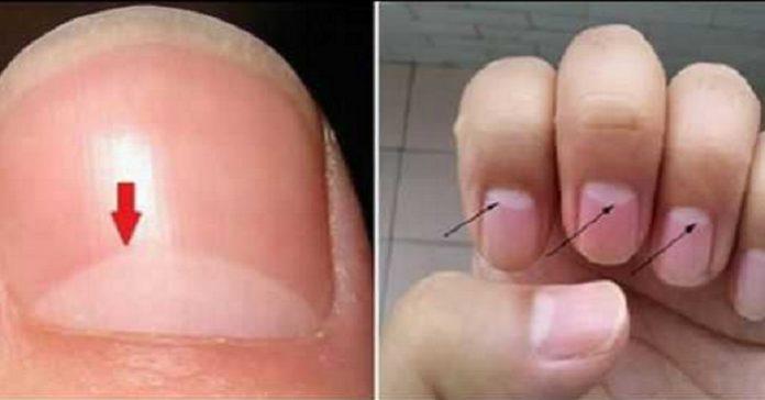 naglar tecken på sjukdom