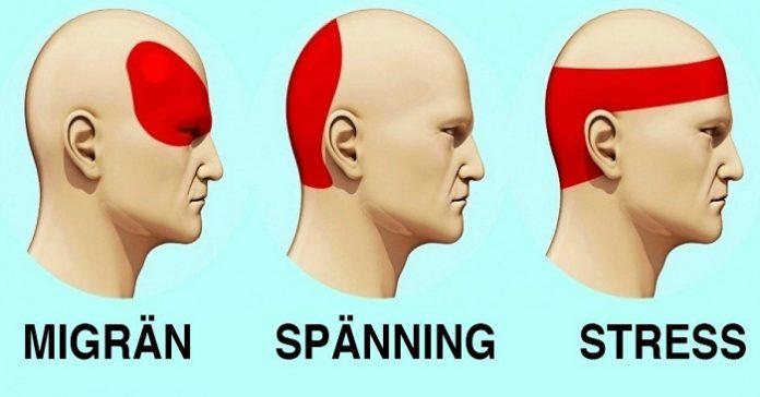 Huvudvärk olika ställen