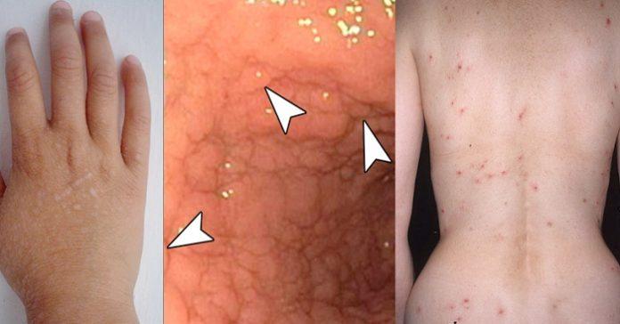glutenintolerans symptom hud